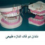 دندان دوفک طبیعی