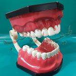 دندان دو فک