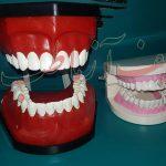 مقایسه اندازه دندان دوفک